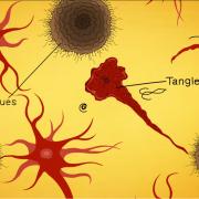 Understanding Alzheimer's | What is Alzheimer's Disease, a video