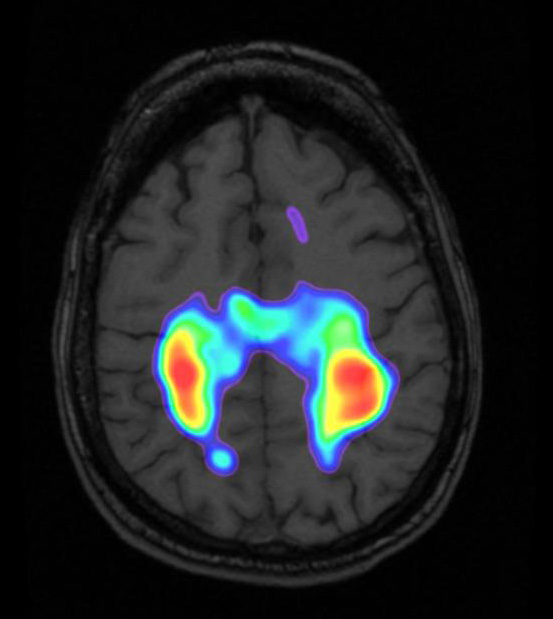 Your brain on Brainpaths. A fMRI image showing the affect of tracing Brainpaths on the somatosensory cortex.
