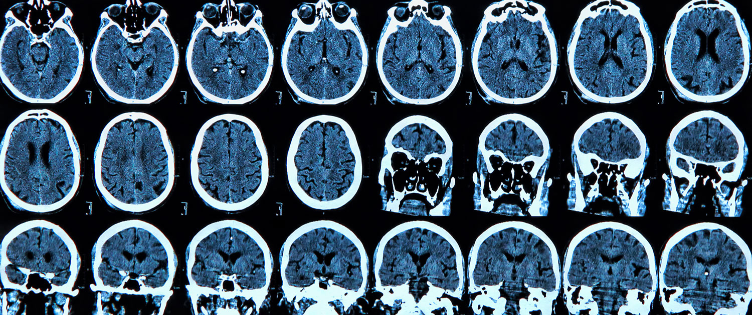 Alzheimer's Disease - A Brief History and Description of the disease