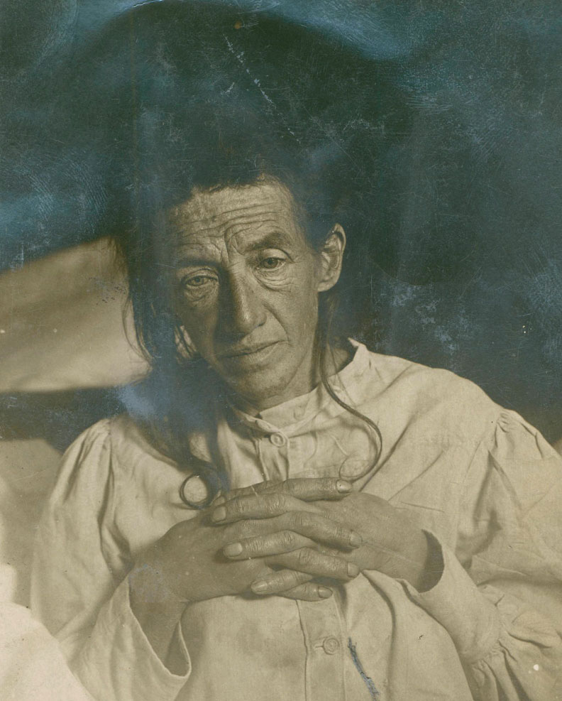 Auguste Deter – taken in 1906 shortly before her death from Alzheimers disease.